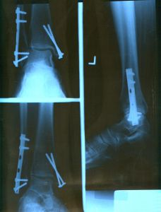 ankle x-ray - hardware.jpg