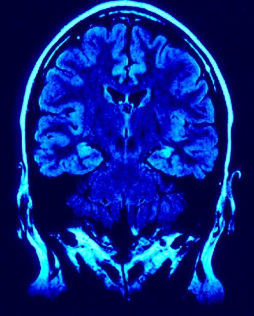 mri-image-brain.jpg