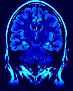 mri-image-brain-241x300